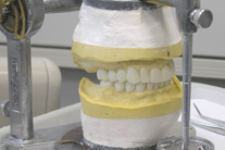 Dental Labs Play Key Role in Tooth Restoration