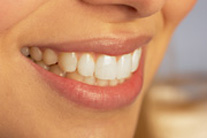 At-Home Tooth Whitening: Good For A Quick Fix
