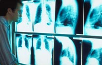 Dental X-Rays Can Aid in Detecting Osteoporosis