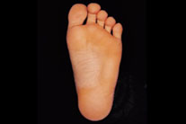 Flat Feet: The Achilles Heel of Middle Age