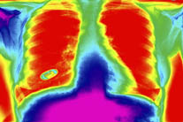 New Lung Cancer Test