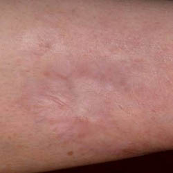 Traumatic Forearm Scar Post Treatment