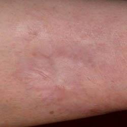 Traumatic Forearm Scar Post Treatment