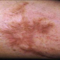 Traumatic Forearm Scar Pre Treatment