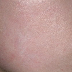 Acne Scars Post Treatment