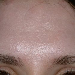 Acne Scarring Post Treatment