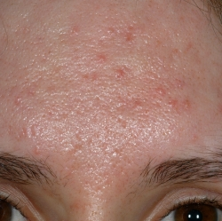 Acne Scarring Pre Treatment