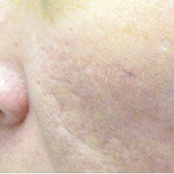 Acne Scar To Cheek Post Treatment