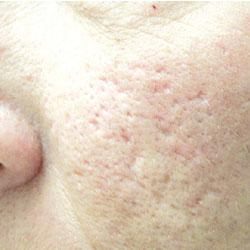 Acne Scar To Cheek Pre Treatment