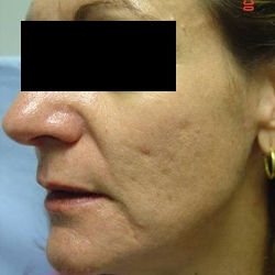 Skin and Aging Treatment