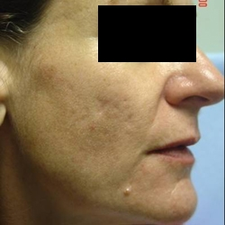 Skin and Aging Treatment 2