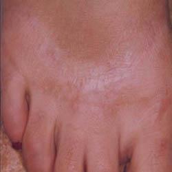 Tattoo Removal Scar Post Treatment