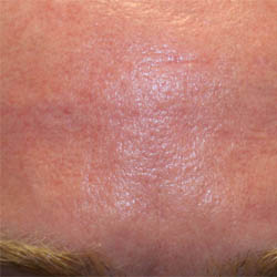 Acne Forehead Scar Post Treatment