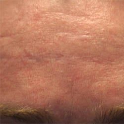 Acne Forehead Scar Pre Treatment