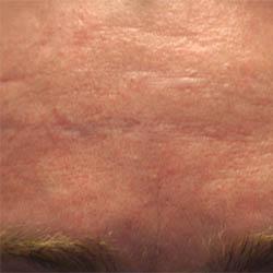 Acne Forehead Scar Pre Treatment