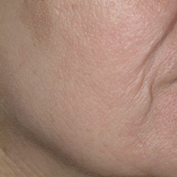 Skin Discoloration Post Fractional Resurfacing
