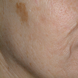 Skin Discoloration Pre Fractional Resurfacing