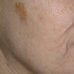 Skin Discoloration Pre Fractional Resurfacing