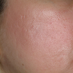 Acne Scar Post Fractional Resurfacing