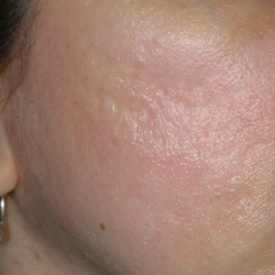Acne Scar Pre Fractional Resurfacing