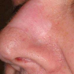 Skin Graft Scar Post Treatment