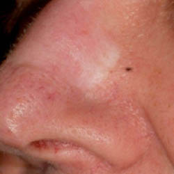 Skin Graft Scar Pre Treatment