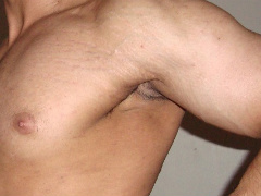 male stretch marks
