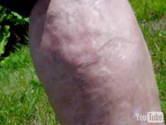 Third Degree Burns, Scar Burns, Scar Treatment
