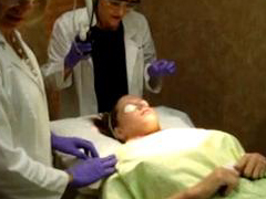 Laser Treatment, Scar Removal, Lumenis UltraPulse