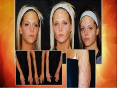 Laser Treatment, Scar Removal, Berns Triplets Story