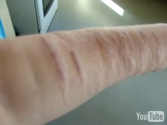Scars from Self-Injury, Scar Treatment, Scar Removal