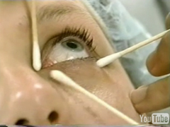 Chemical Peels, Scar Treatments, Acne Scars