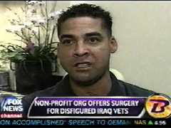 Iraq Star, War Wounds, Scar Treatment