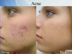 Laser Treatment, Acne Scars, Fontana Laser