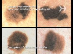 recognize skin cancer