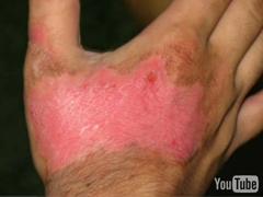 Burn Scars, Scar Healing, Scar Treatment